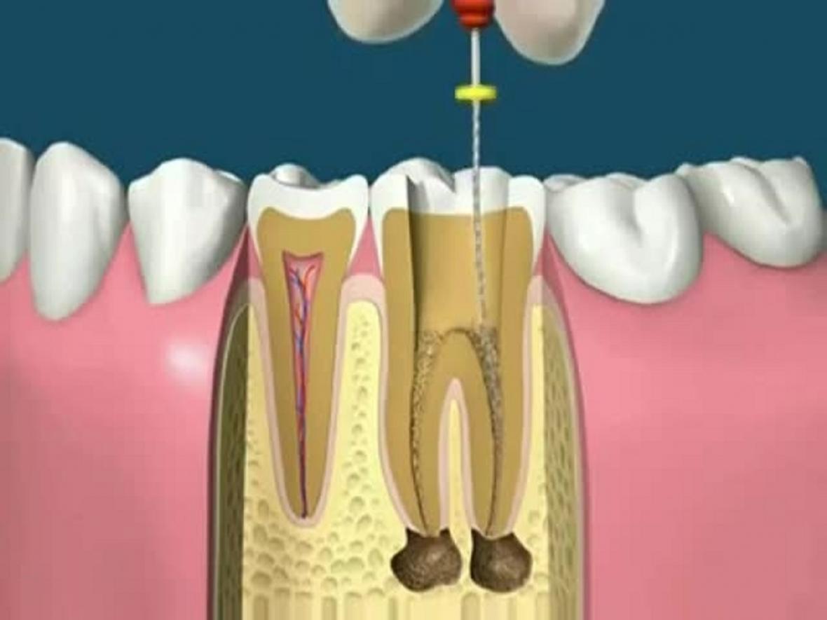 چه زمانی دندان ها به درمان کانال ریشه نیاز دارند؟